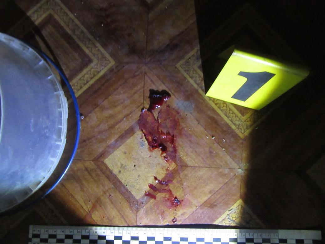 Розпивання спиртних напоїв закінчилося кривавою різаниною. Прокуратура повідомила про підозру 37-річній мешканці Івано-Франківська у вчиненні замаху на умисне вбивство (фото)